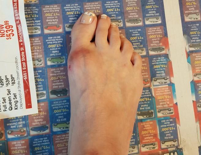 foot oww